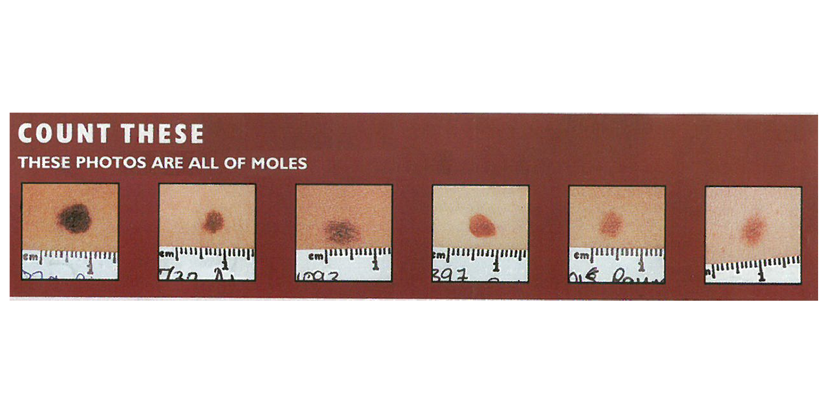 Moles correct size chart, showing various different mole types