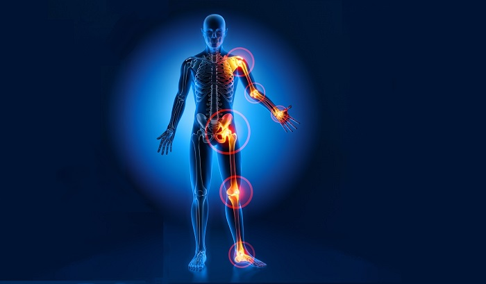 musculoskeletal short course image of joint pain