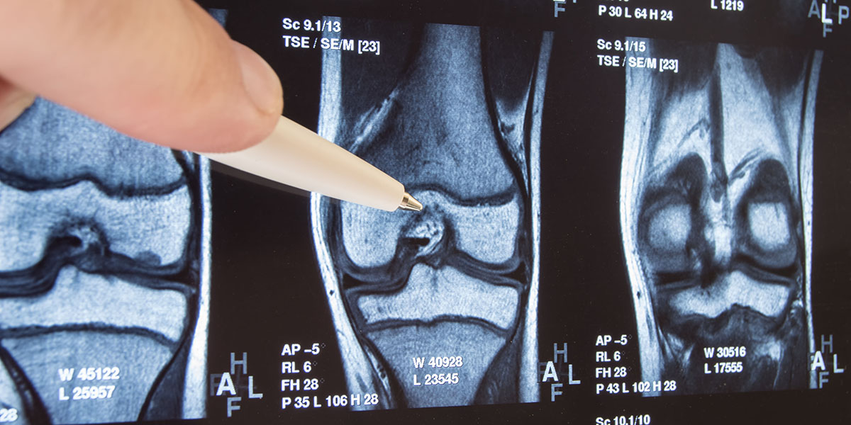 £2 million in funding awarded for knee osteoarthritis treatment trial