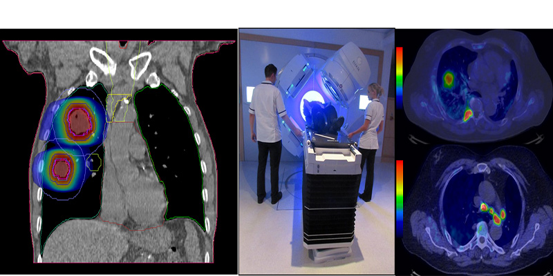 A radiotherapy research collage of images, left to right: a PET CT scan image of lungs, a patient undergoing treatment, a PET CT scan image of lungs from above